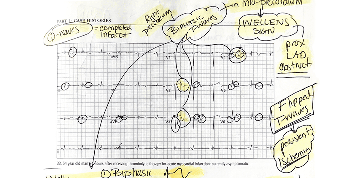 How I Learned to Read ECGs Better than a Cardiologist